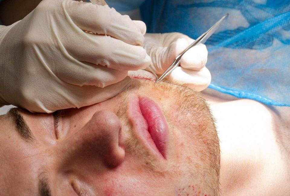 Beard Transplantations
